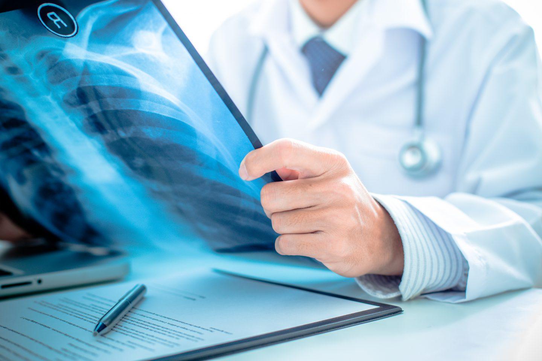 Câncer na coluna é comum?