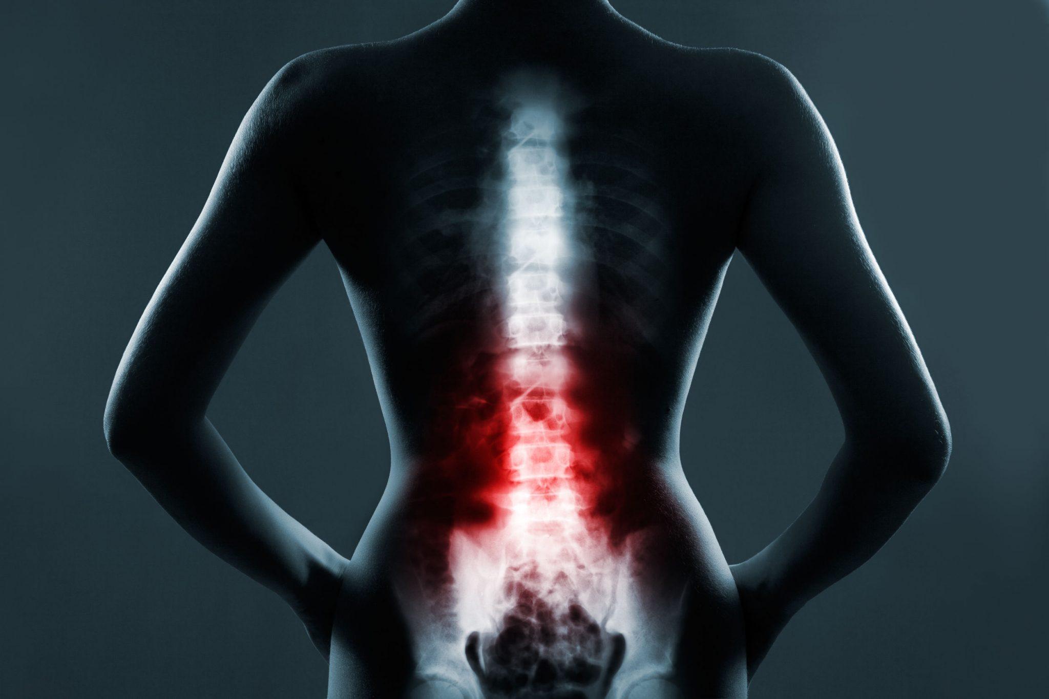Tumores de coluna: como diagnosticar e tratar