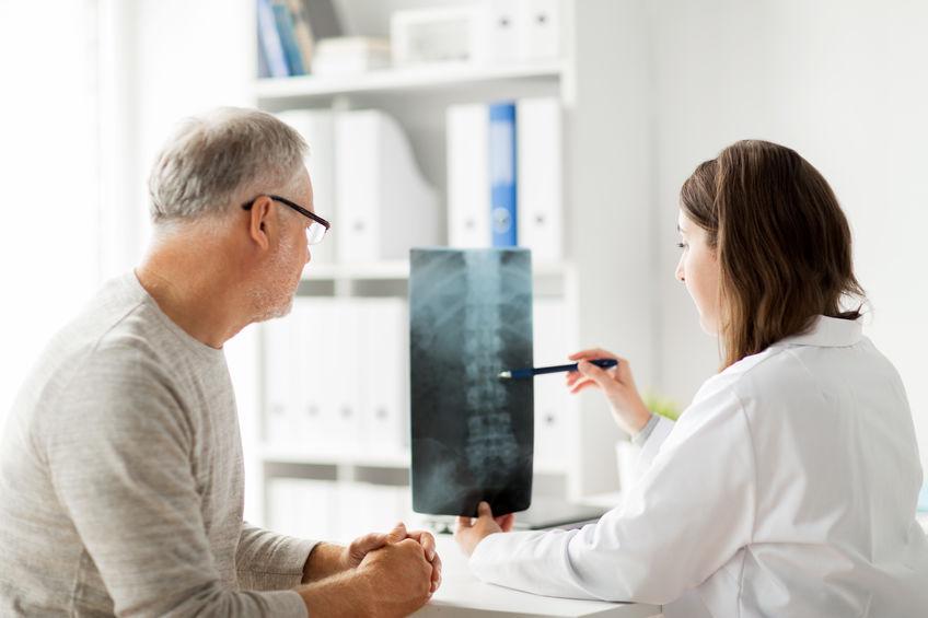 Osteopenia na coluna: o que é, sintomas, causas e tratamentos
