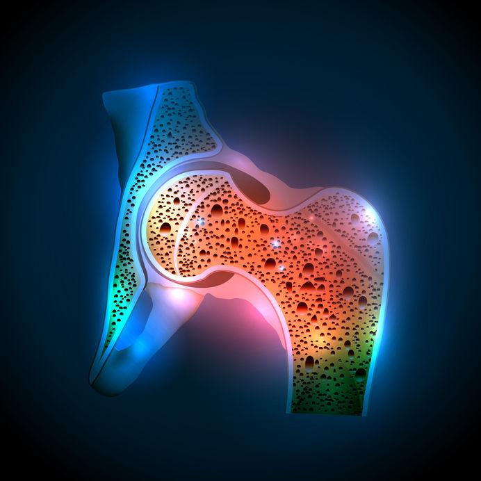Conheça os tipos de osteoporose