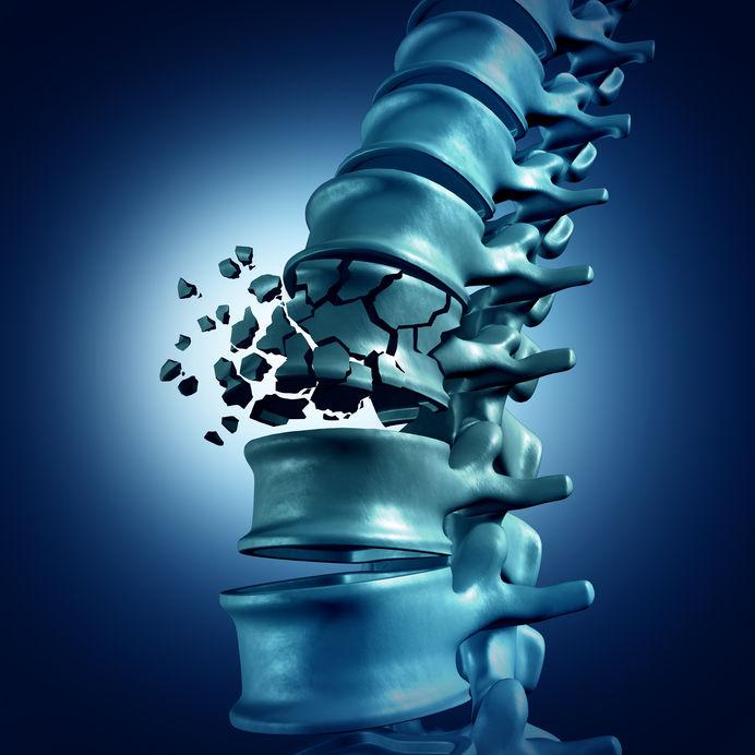 4 complicações graves da osteoporose