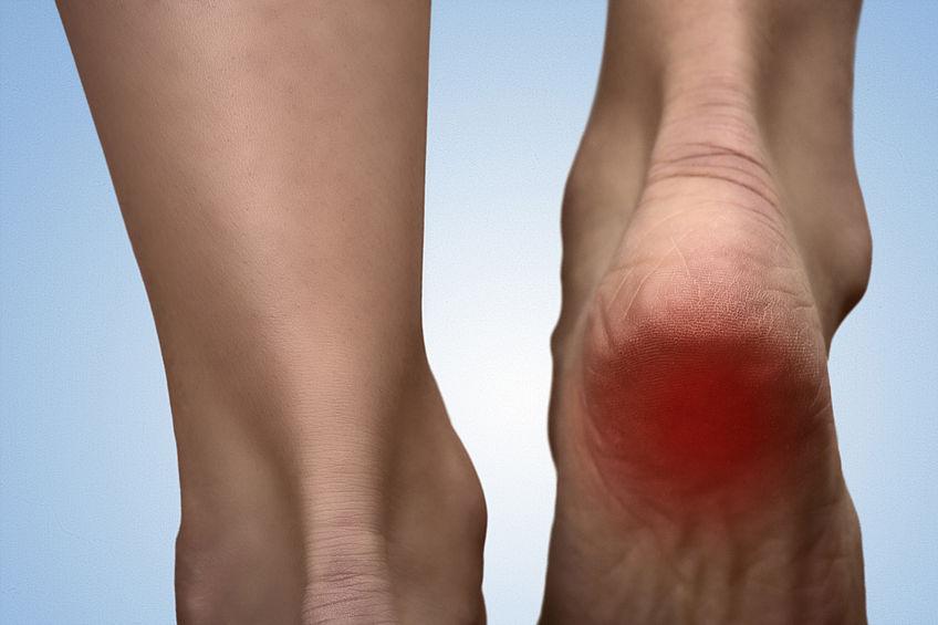 Esporão – Sintomas, causas e tratamento